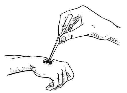 рис. 1. прикладывание пчелы к подготовленному участку кожи